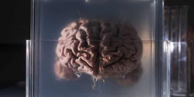 nectome sauvegarde cerveau cloud
