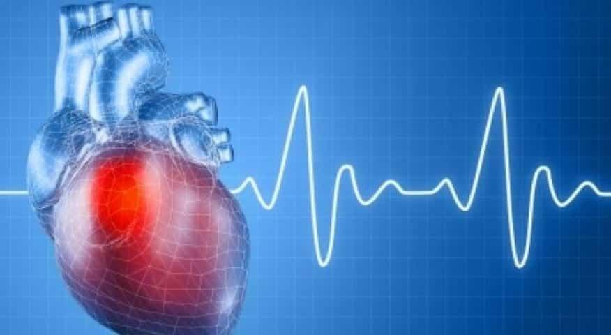 infarctus big data