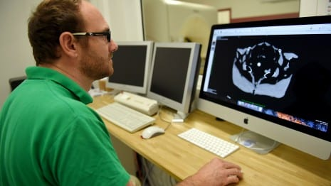 theresa may diagnostic cancer big data ia